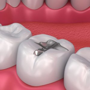 Roberts Dental Clinic | Tooth Filling | Surulere