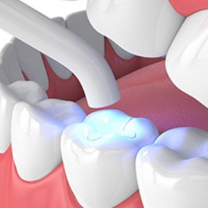 Roberts Dental Clinic| Glass Ionomer Cement Filling | Surulere