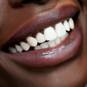 Teeth Whitening   One Session