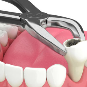 Tooth Extraction & Filling | Combo Deal